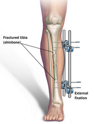 Over time, the rod pulls the newly healing bones apart, requiring the healing process to fill in the gap and effectively extending the leg. The procedure lasts 3 months long, in addition to several months of physical therapy.