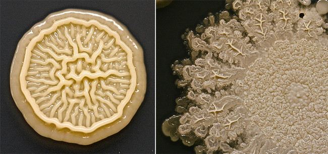 Close-ups of some of the bacteria present in the dish.