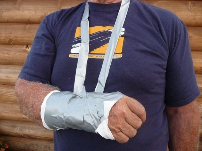 Duct Tape Soft Cast